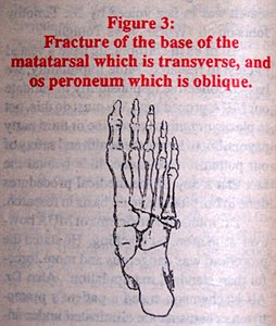 Fracture of the base of the metatarsal which is transverse, and or peroneum which is oblique.