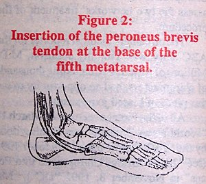 Insertion of the peroneus brevis tendon at the base of the fifth metatarsal.