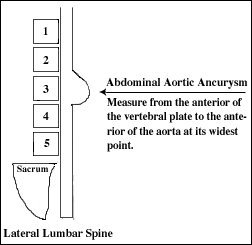 abdominal aortic aneurysm and low back pain, Human Body