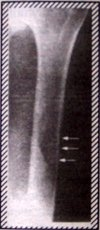 X-ray of humerus 2