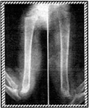 X-Ray of humerus 3