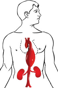 Aortic Aneurysm - Copyright – Stock Photo / Register Mark
