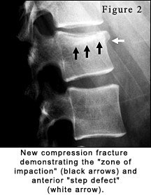 Lumbar Spine: Old vs  New Compression Fracture