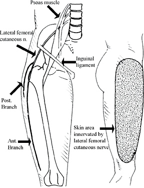lateral femoral cutaneous nerve entrapments, Muscles