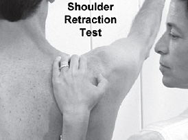 scapular retraction test - Copyright – Stock Photo / Register Mark
