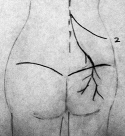 thoracolumbar junction or superior cluneal nerve entrapment syndrome, Muscles