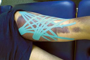 kinesio taping - Copyright – Stock Photo / Register Mark