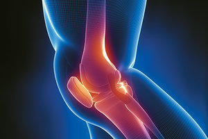 knee pain - Copyright – Stock Photo / Register Mark
