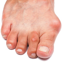 gout - Copyright – Stock Photo / Register Mark