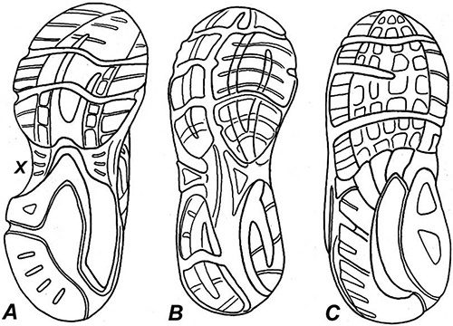 Arch Height and Running Shoes: The Best Advice to Give Patients