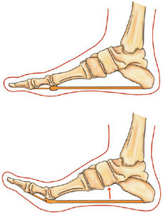 Dorsiflexion of the hallux - Copyright – Stock Photo / Register Mark