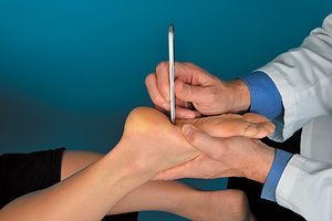 plantar fascia - Copyright – Stock Photo / Register Mark