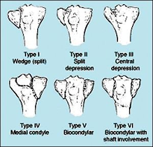 Classification Of Tibial Condyle Fracture