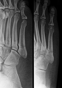 Jones fracture - Copyright – Stock Photo / Register Mark
