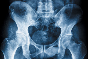 pelvic xray - Copyright – Stock Photo / Register Mark