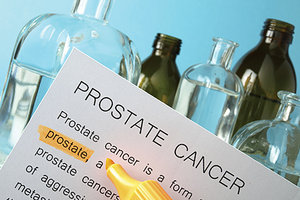 prostate cancer - Copyright – Stock Photo / Register Mark