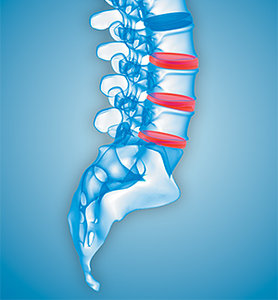 disc pain - Copyright – Stock Photo / Register Mark