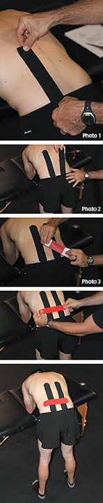 elastic therapeutic taping - Copyright – Stock Photo / Register Mark